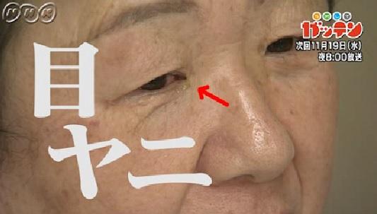 ためしてガッテン 11月19日 目の加齢黄斑変性.jpg