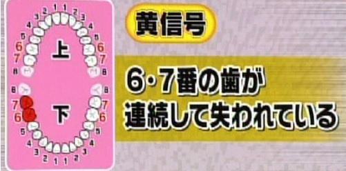 ためしてガッテン 虫歯 黄信号.jpg