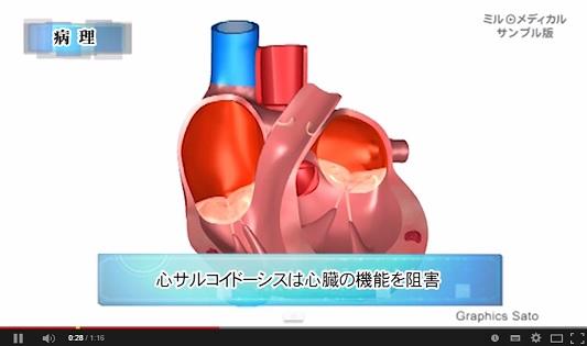 サルコイドーシス 動画.jpg