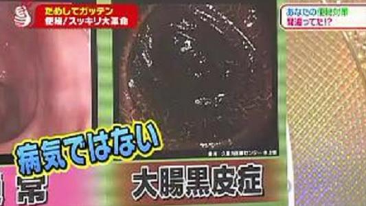 大腸黒皮症.jpg