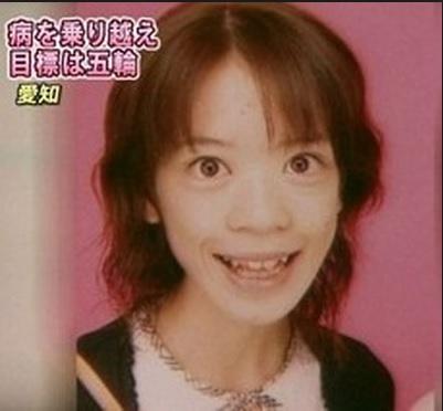 鈴木明子 摂食障害.jpg